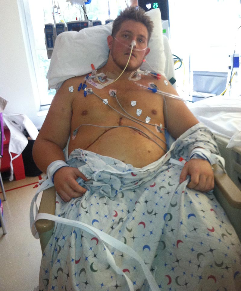 Gavin Post-Transplant